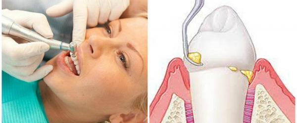 Скидка на повторное снятие зубных отложений